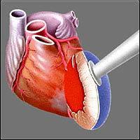 Трансмиокардиальная лазерная реваскуляризация миокарда - Головная часть Heart Laser, через которую поступают лазерные импульсы, прикладывается к эпикарду левого желудочка