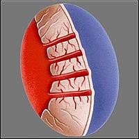 Трансмиокардиальная лазерная реваскуляризация миокарда - После процедуры каналы со стороны эпикарда закрываются самостоятельно. Скорее всего, во время дальнейшего после-операционного периода каналы полностью закрываются сгустками фибрина