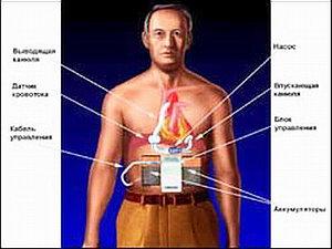 Имплантация искусственного сердца - В 1998 году впервые в мире был имплантирован искусственный желудочек с принципиально новым принципом действия, сконструированный при участии специалистов NASA и Майкла ДеБейки. Этот маленький насос массой всего 93 грамма способен перекачивать до 6-7 литров крови в минуту и тем самым обеспечивать нормальную жизнедеятельность всего организма