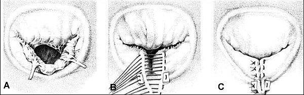 Протезирование митральных клапанов сердца - Реконструкция (протезирование митрального клапана) по методике Гербоде: А. Недостаточность клапана до операции; В. Ушивание задней створки митрального клапана; С. Герметичное закрытие клапана после реконструкцию