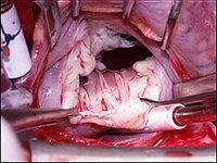 Протезирование митральных клапанов сердца - Вид на недостаточный митральный клапан во время операции