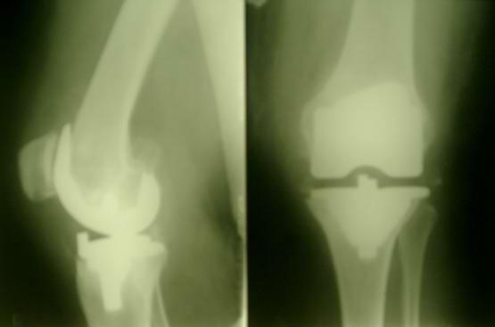 Протезирование коленного сустава вид после операции.