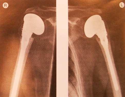 Эндопротезирование плечевого сустава - вид после операции.