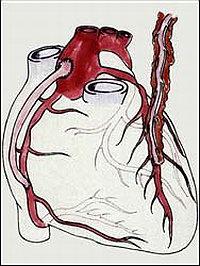 Операция коронарного шунтирования: Справа на рисунке показан анастомоз левой грудной артерии с левой нисходящей коронарной артерией, а слева показан венозный шунт между аортой и правой коронарной артерией.